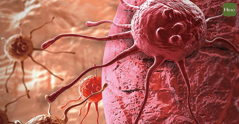 癌症_癌細胞-01
